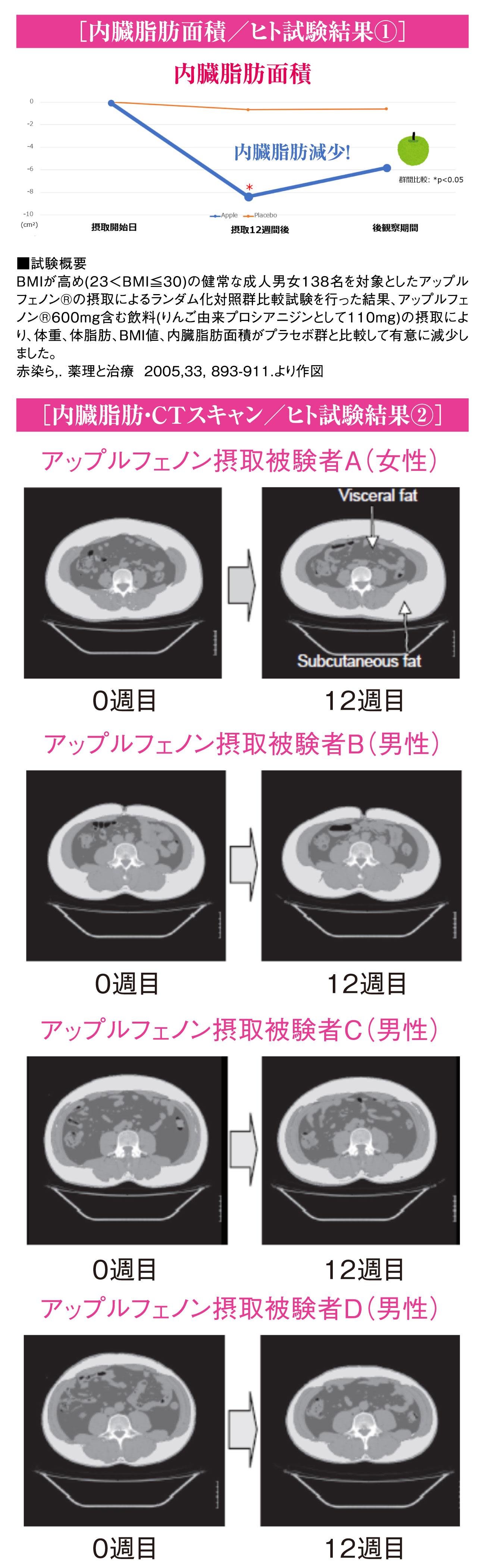 内臓脂肪・CTスキャン